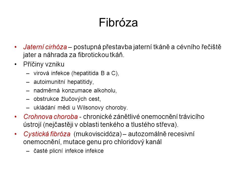 Fibróza Jaterní cirhóza – postupná přestavba jaterní tkáně a cévního řečiště jater a náhrada za fibrotickou tkáň.