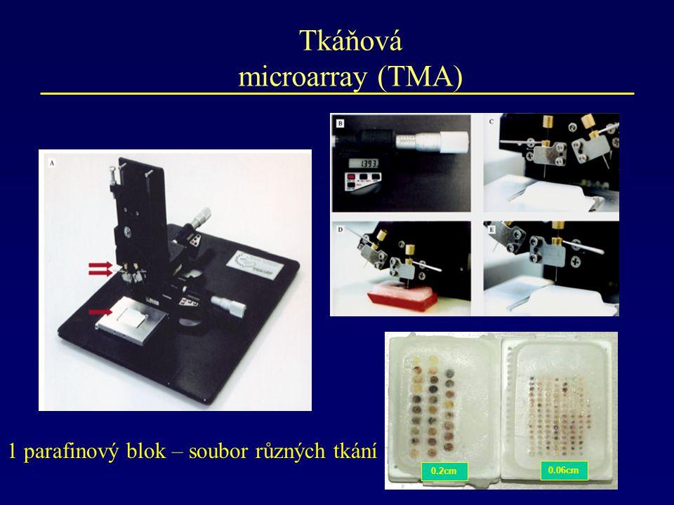 Tkáňová microarray (TMA)