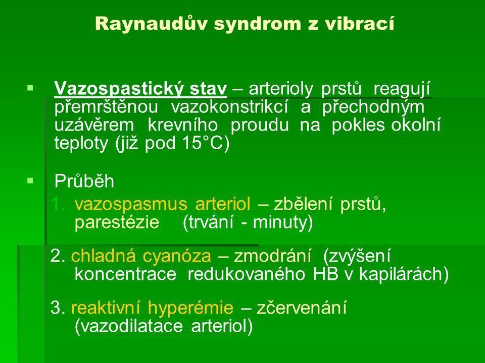 Raynaudův syndrom z vibrací