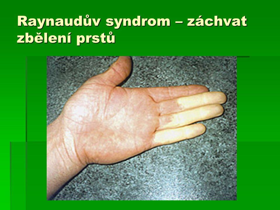 Raynaudův syndrom – záchvat zbělení prstů