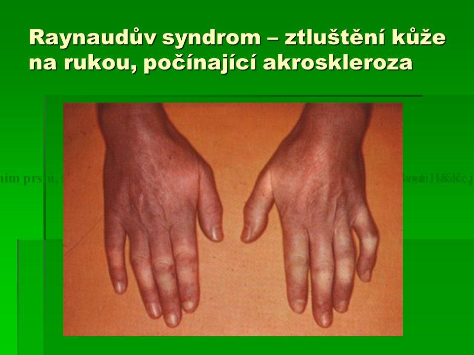 Raynaudův syndrom – ztluštění kůže na rukou, počínající akroskleroza