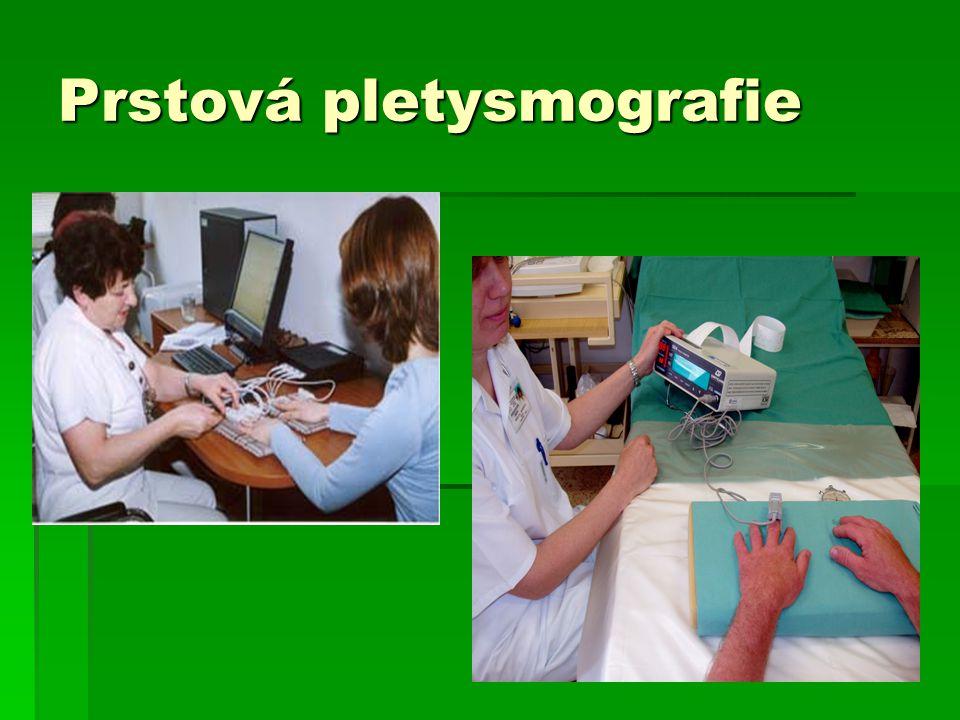 Prstová pletysmografie
