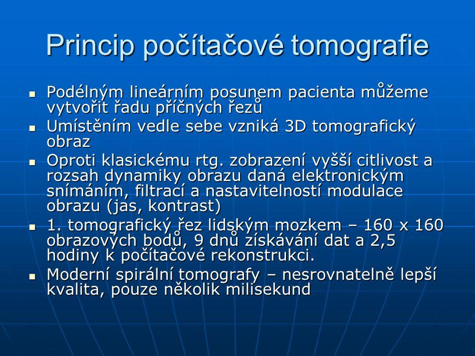 Princip počítačové tomografie