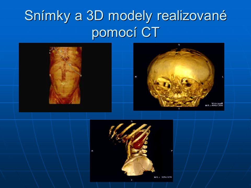 Snímky a 3D modely realizované pomocí CT