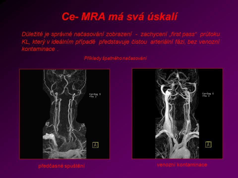 Ce- MRA má svá úskalí