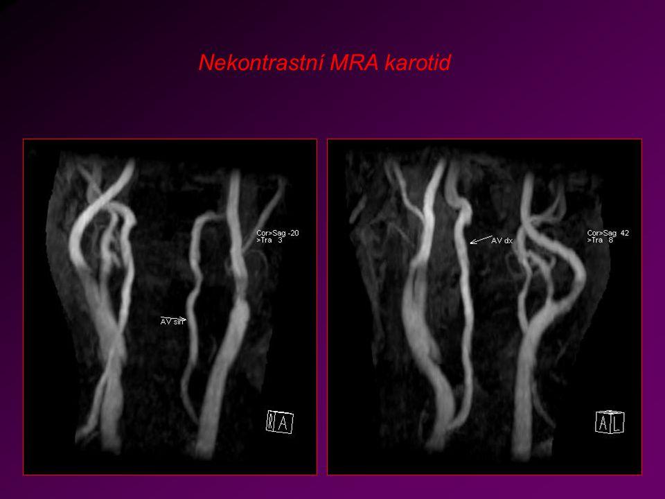 Nekontrastní MRA karotid