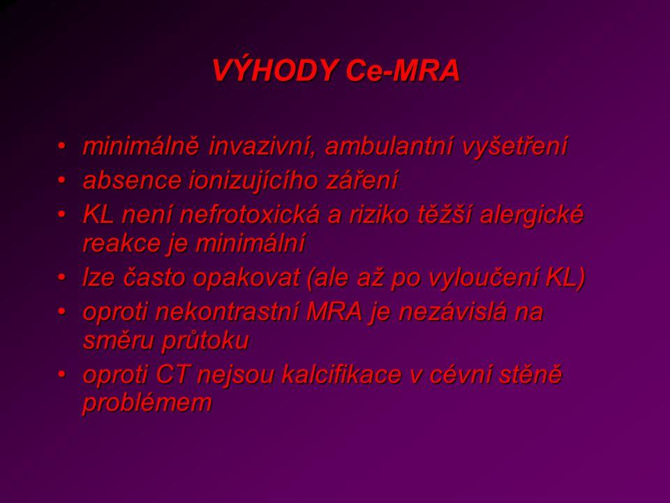 VÝHODY Ce-MRA minimálně invazivní, ambulantní vyšetření