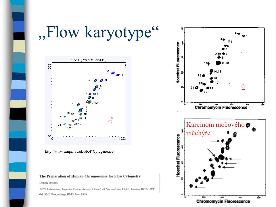 """""""Flow karyotype ♀ ♂ Karcinom močového měchýře"""