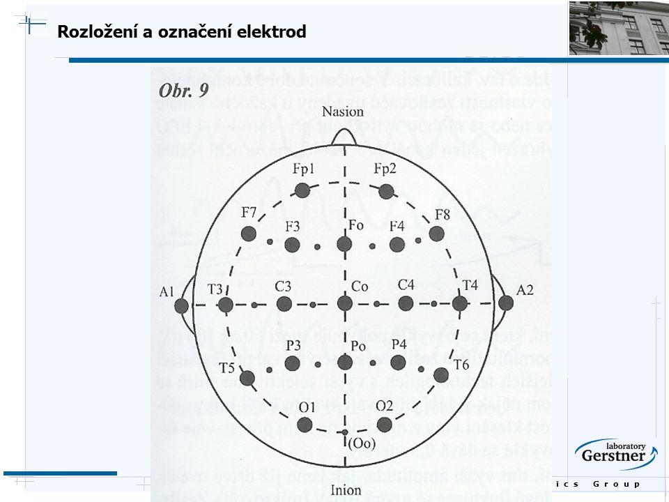 Rozložení a označení elektrod