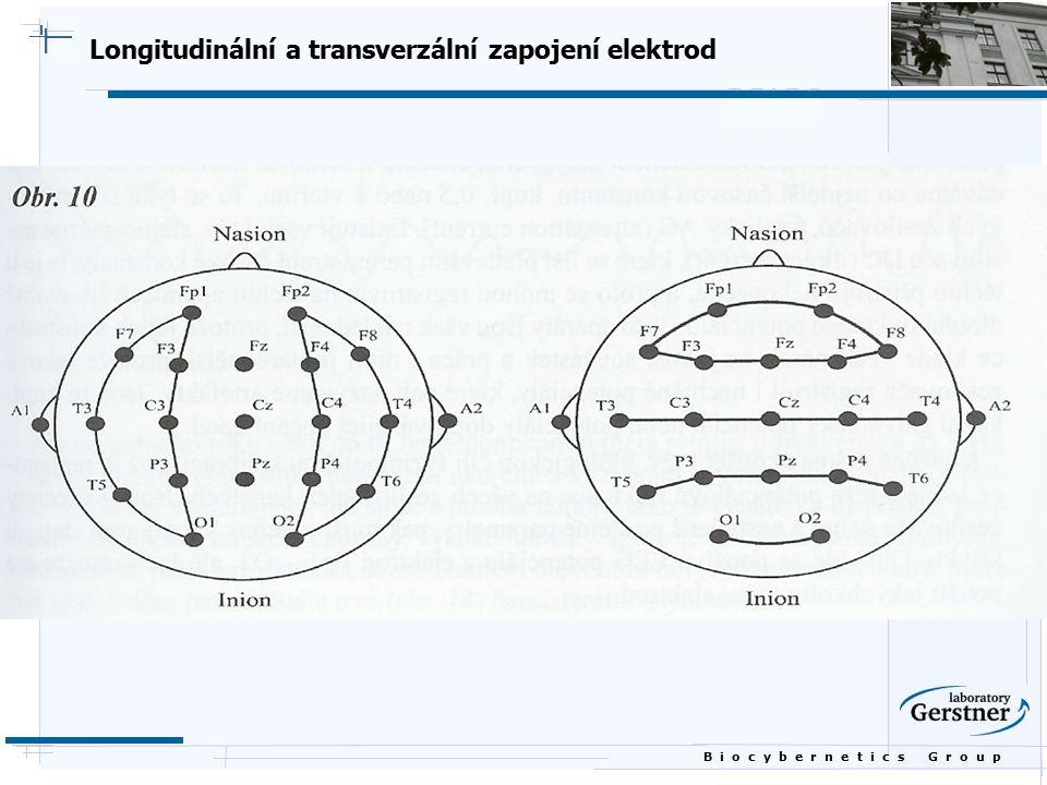 Longitudinální a transverzální zapojení elektrod
