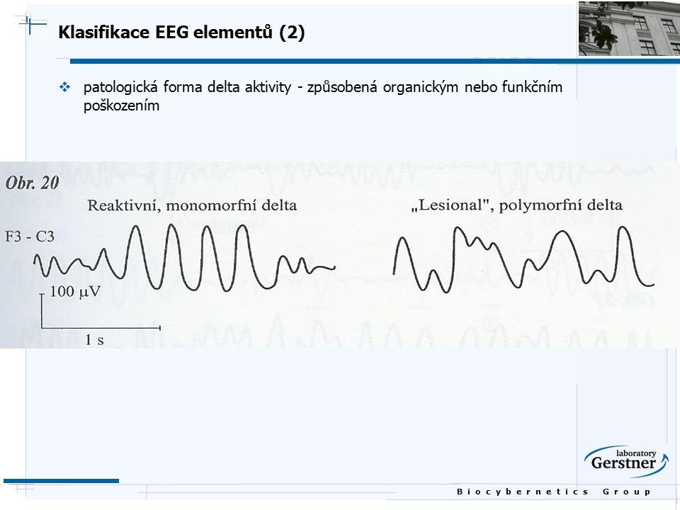 Klasifikace EEG elementů (2)