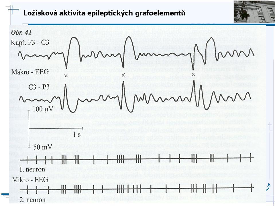 Ložisková aktivita epileptických grafoelementů