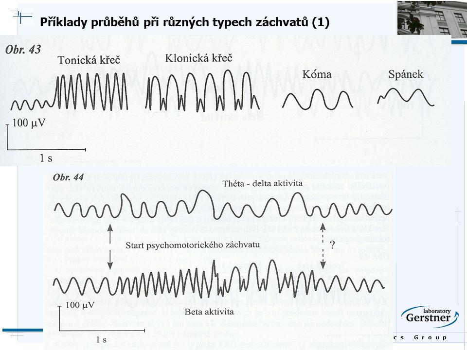 Příklady průběhů při různých typech záchvatů (1)
