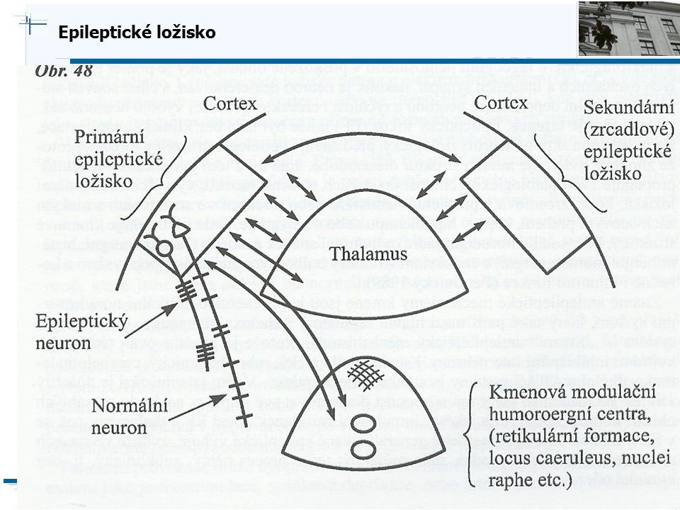 Epileptické ložisko