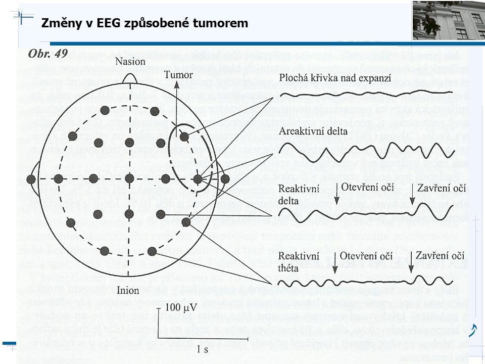 Změny v EEG způsobené tumorem