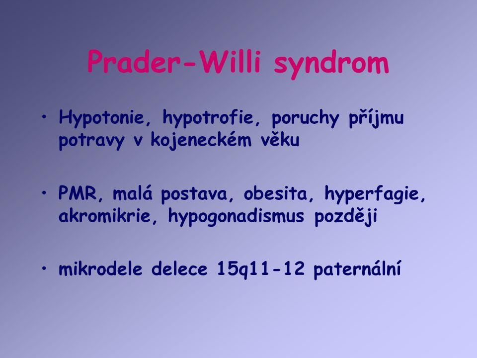 Prader-Willi syndrom Hypotonie, hypotrofie, poruchy příjmu potravy v kojeneckém věku.