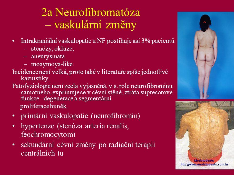 2a Neurofibromatóza – vaskulární změny