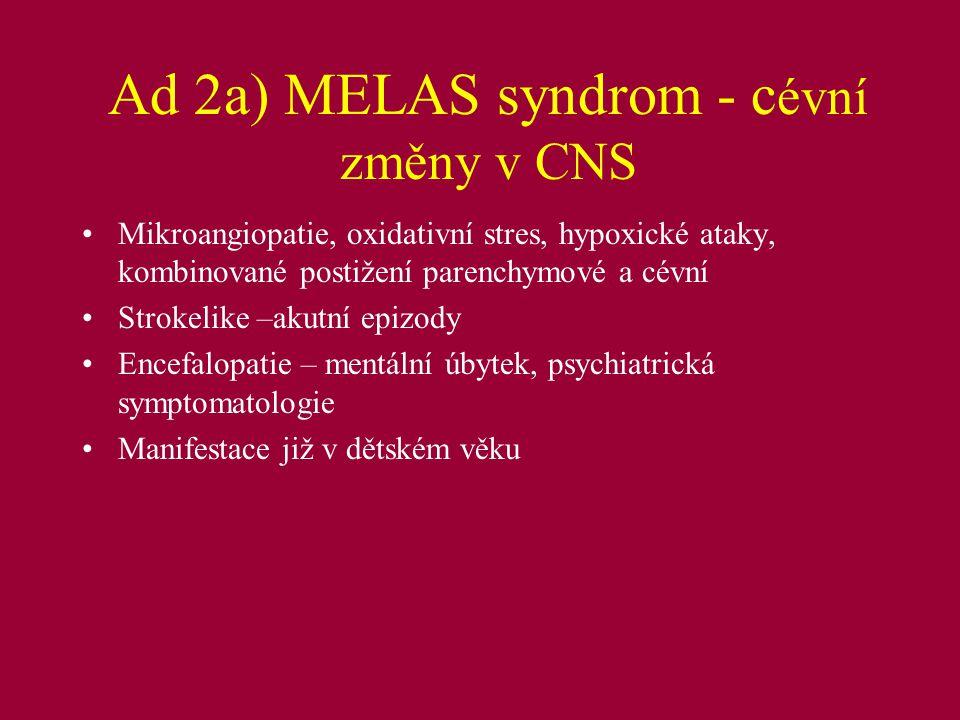 Ad 2a) MELAS syndrom - cévní změny v CNS