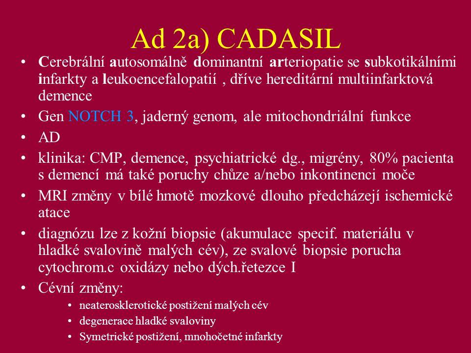 Ad 2a) CADASIL