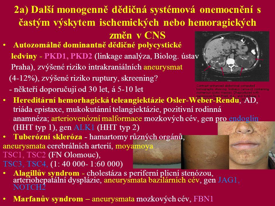 2a) Další monogenně dědičná systémová onemocnění s častým výskytem ischemických nebo hemoragických změn v CNS