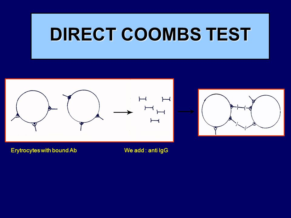 DIRECT COOMBS TEST Erytrocytes with bound Ab We add : anti IgG