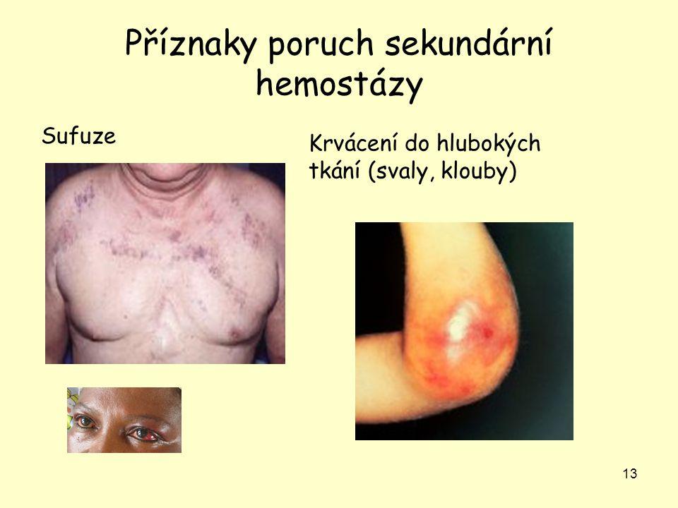 Příznaky poruch sekundární hemostázy