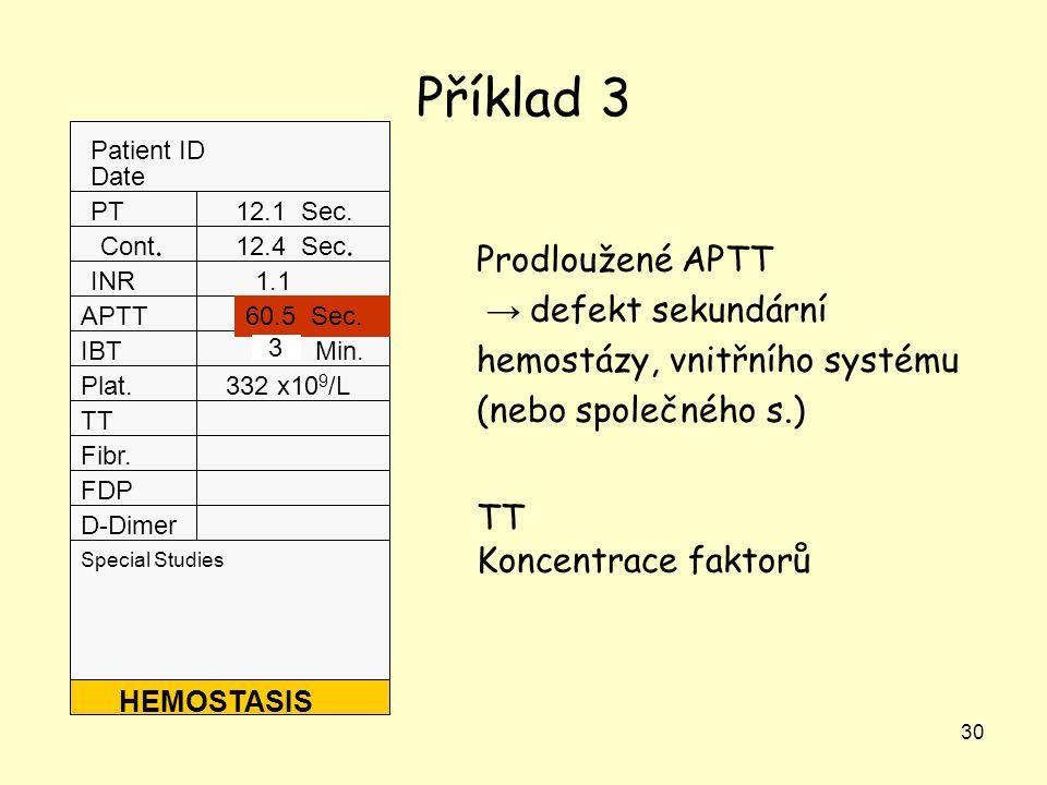 Příklad 3 Prodloužené APTT