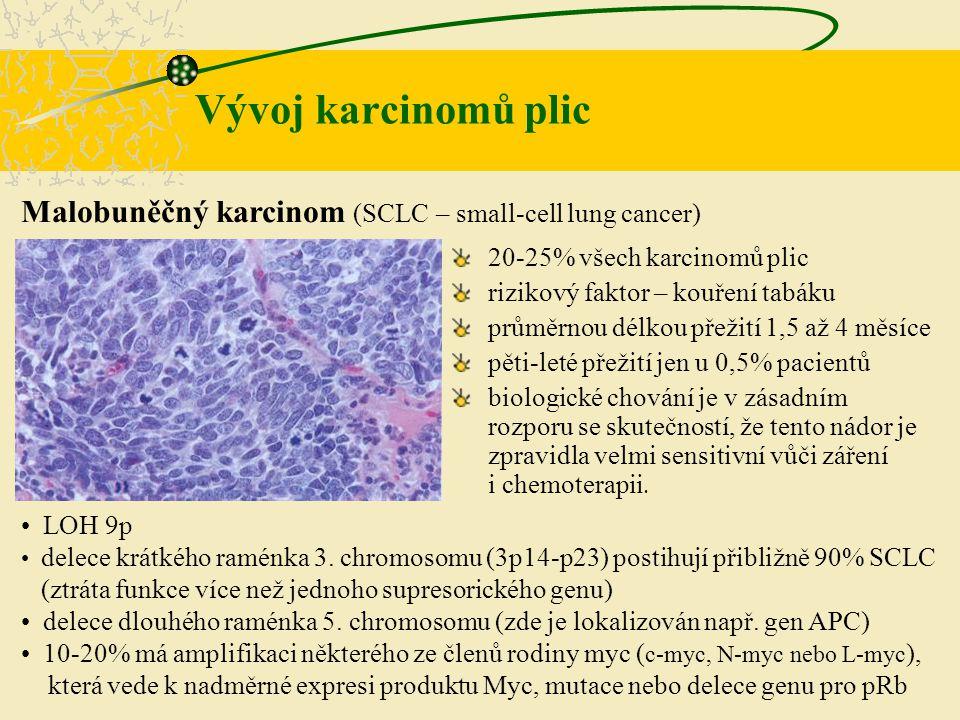 Vývoj karcinomů plic Malobuněčný karcinom (SCLC – small-cell lung cancer) LOH 9p.
