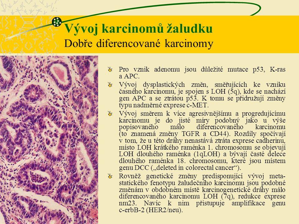 Vývoj karcinomů žaludku Dobře diferencované karcinomy