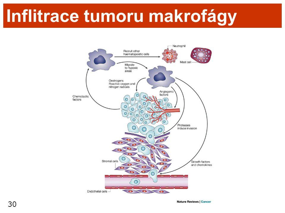 Inflitrace tumoru makrofágy