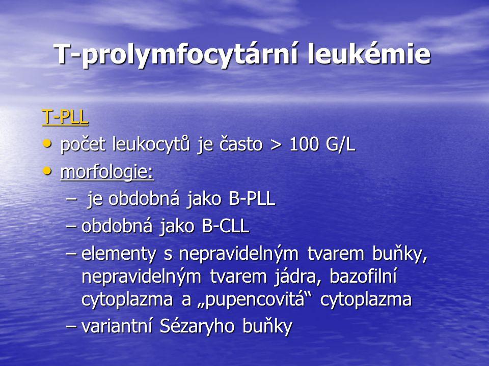 T-prolymfocytární leukémie