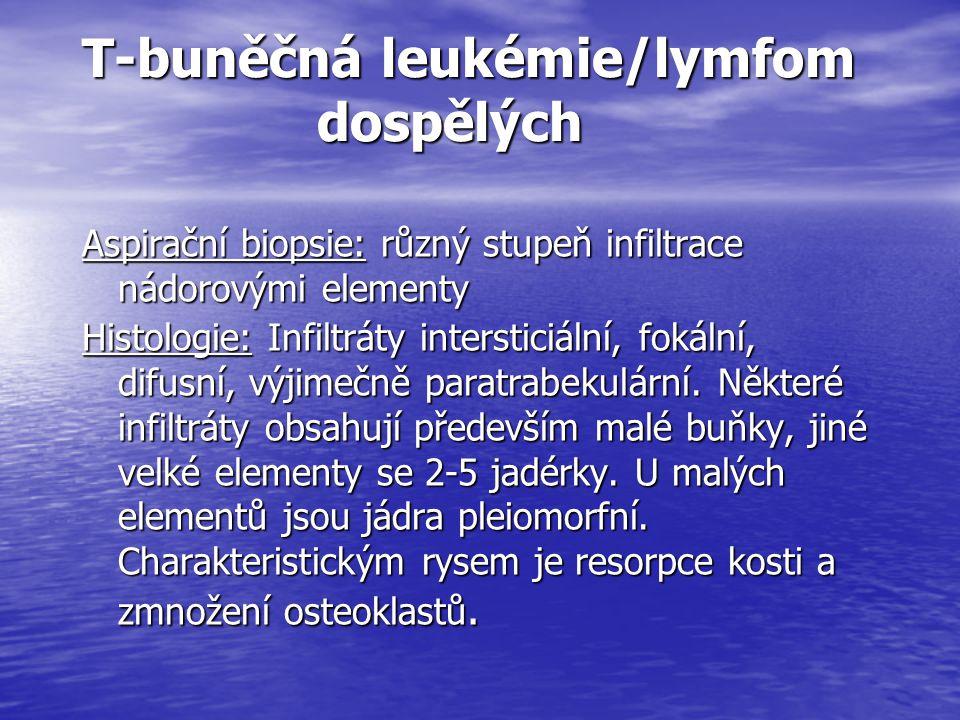 T-buněčná leukémie/lymfom dospělých