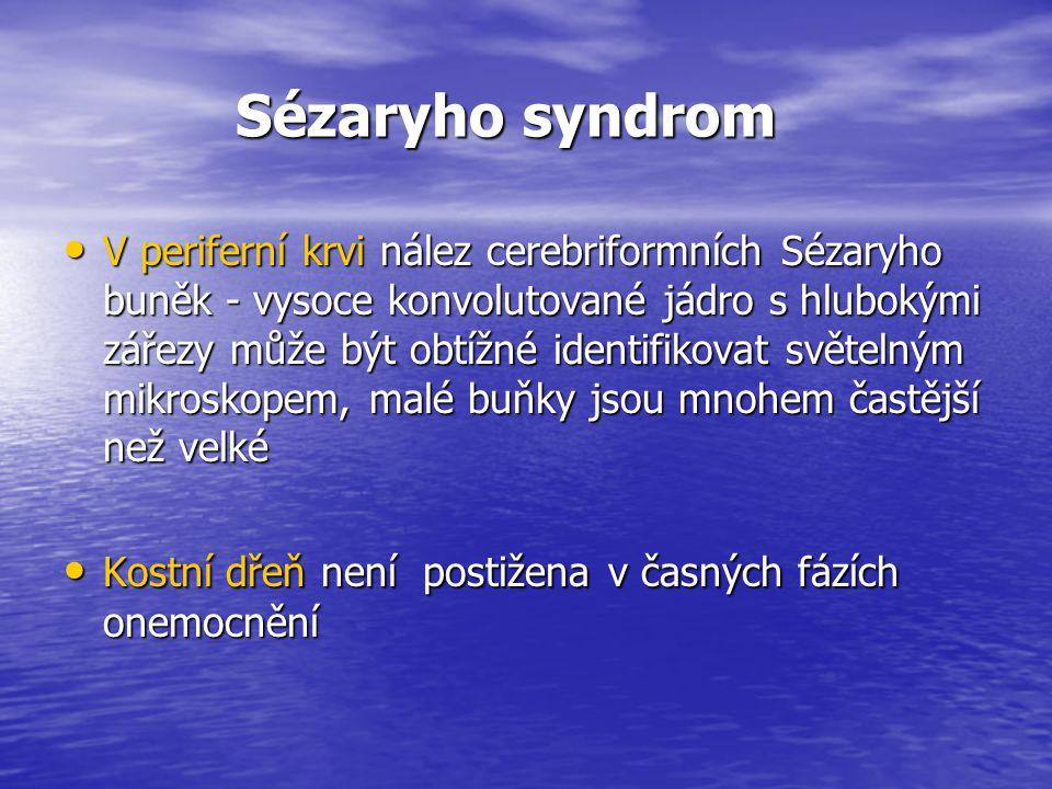 Sézaryho syndrom