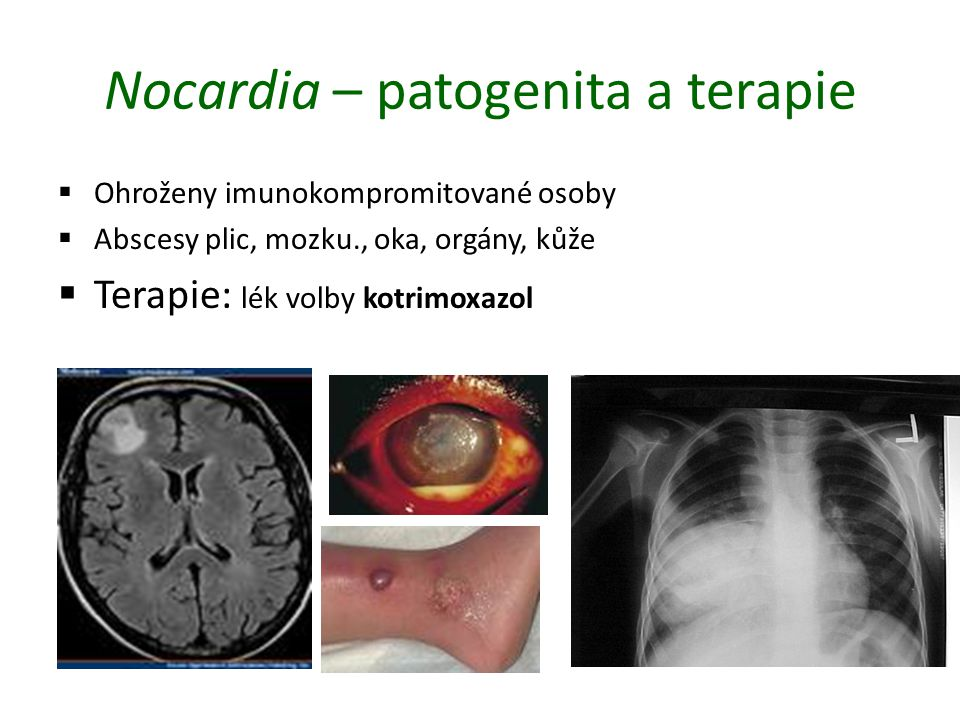 Nocardia – patogenita a terapie