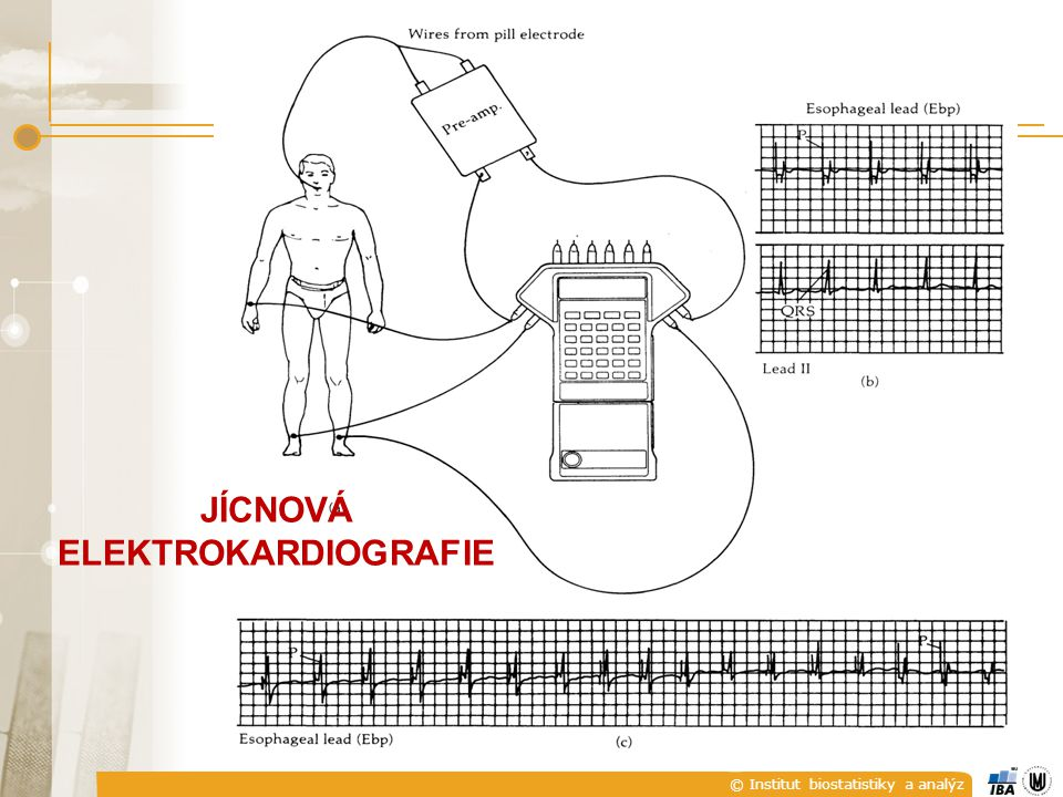 JÍCNOVÁ ELEKTROKARDIOGRAFIE