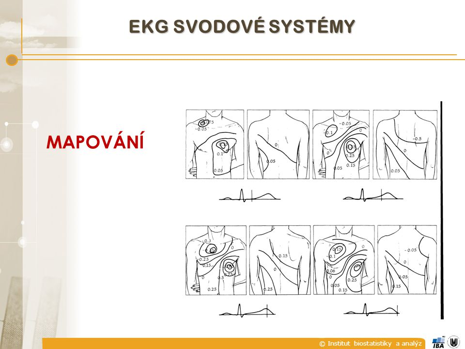EKG SVODOVÉ SYSTÉMY MAPOVÁNÍ