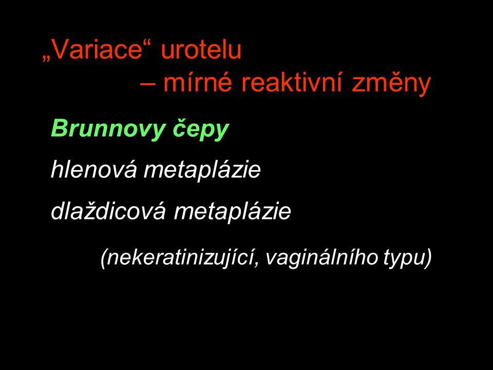 """""""Variace urotelu – mírné reaktivní změny"""