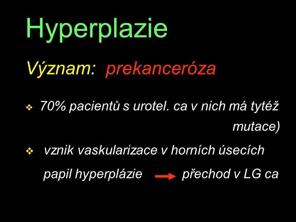 Hyperplazie Význam: prekanceróza vznik vaskularizace v horních úsecích