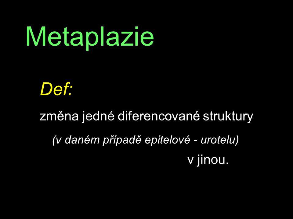 Metaplazie Def: změna jedné diferencované struktury