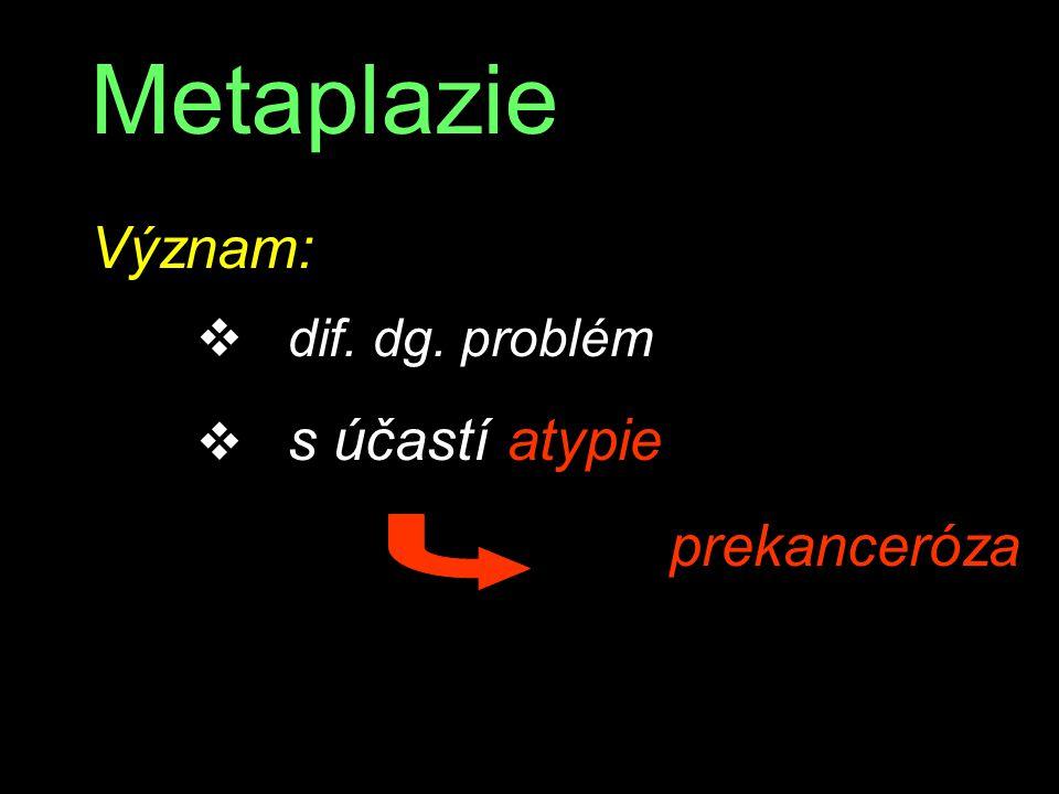 Metaplazie Význam: dif. dg. problém s účastí atypie prekanceróza