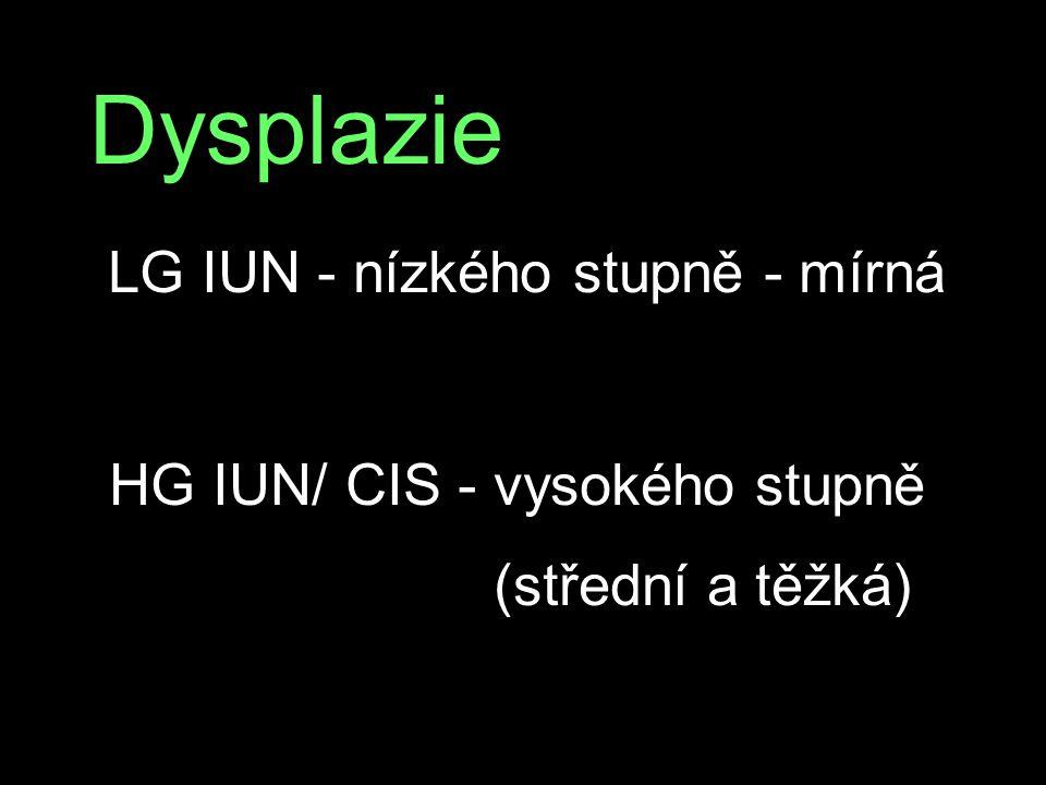 Dysplazie HG IUN/ CIS - vysokého stupně (střední a těžká)