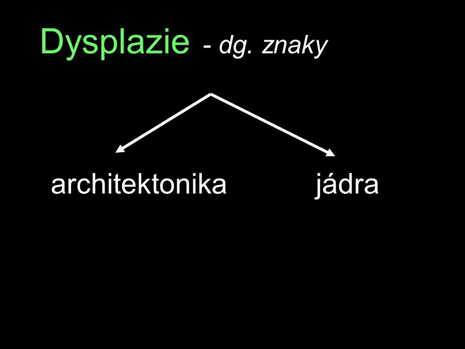 Dysplazie - dg. znaky architektonika jádra