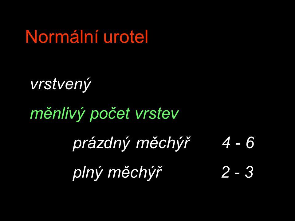 vrstvený měnlivý počet vrstev prázdný měchýř 4 - 6 plný měchýř 2 - 3