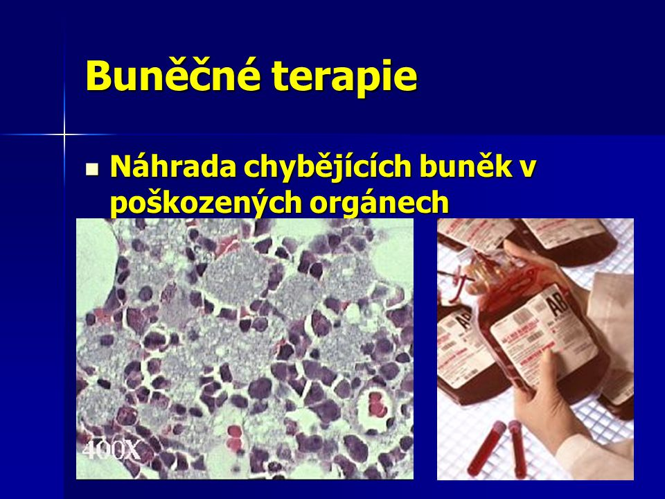 Buněčné terapie Náhrada chybějících buněk v poškozených orgánech
