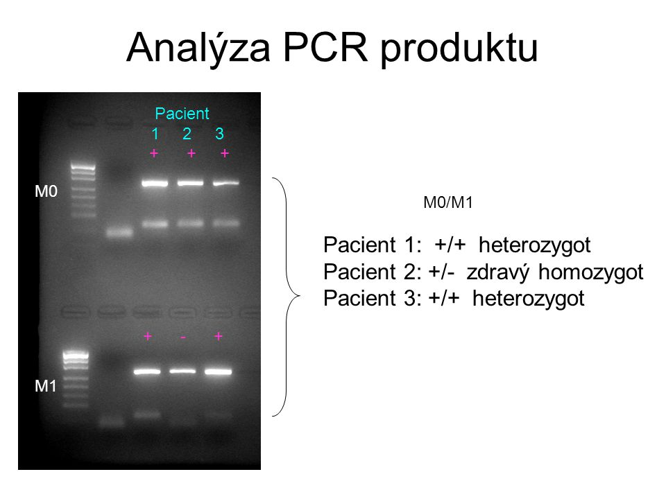 Analýza PCR produktu Pacient 1: +/+ heterozygot