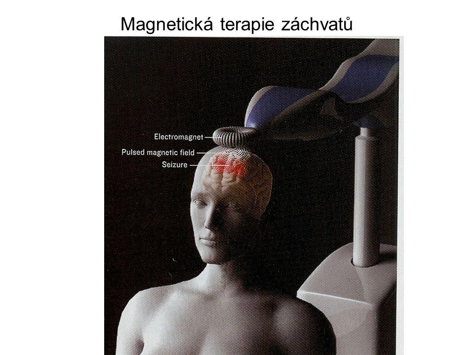 Magnetická terapie záchvatů