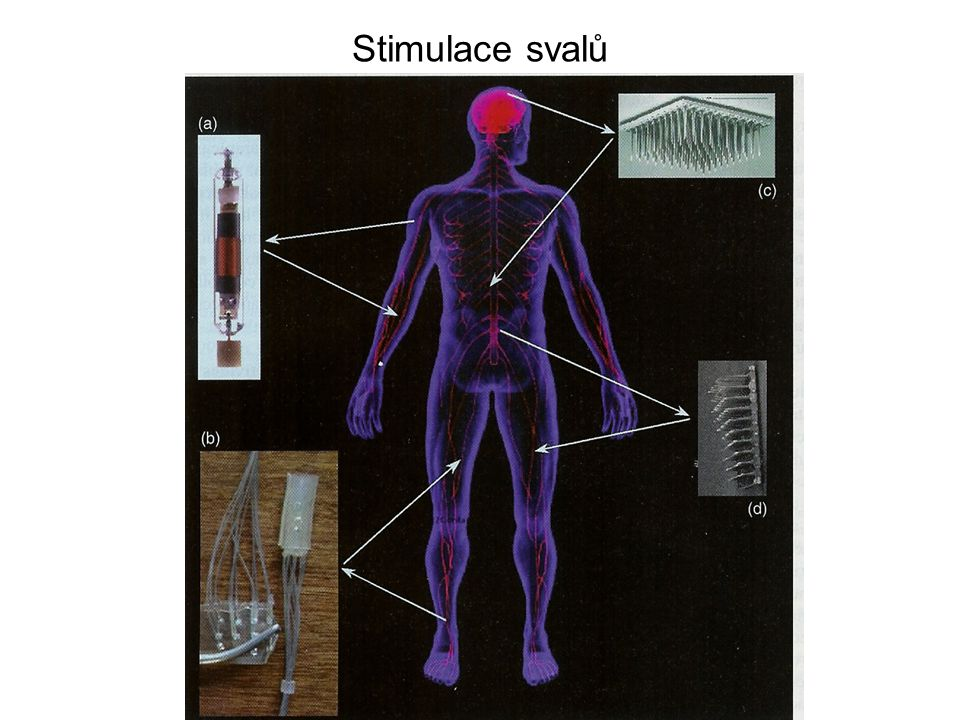 Stimulace svalů