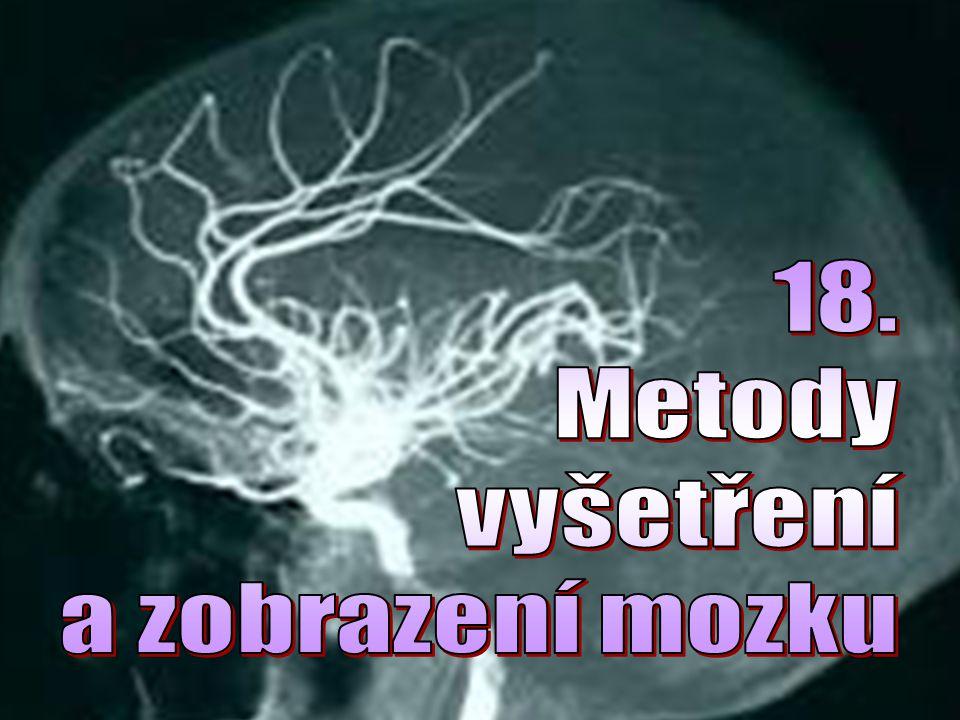 18. Metody vyšetření a zobrazení mozku