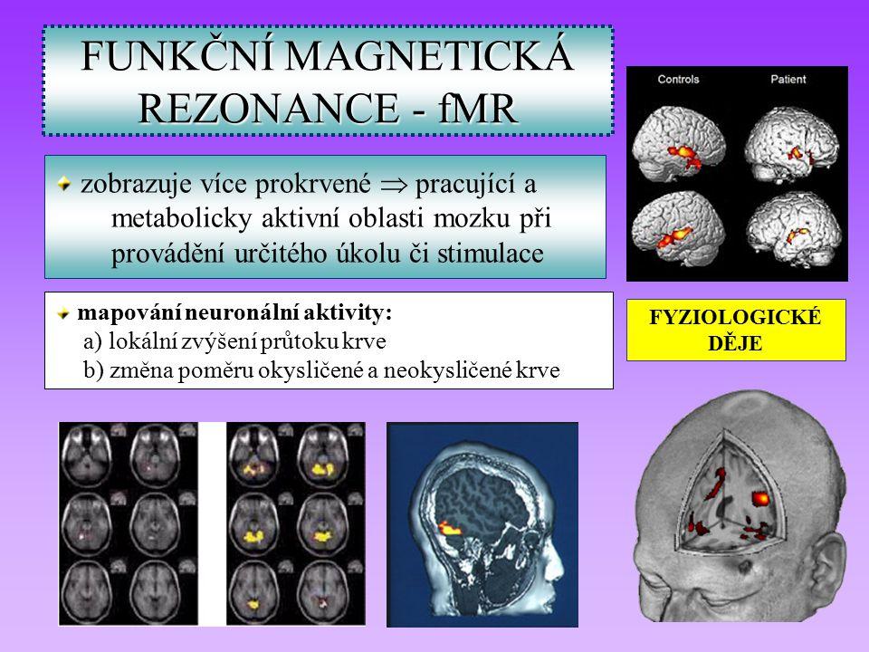 FUNKČNÍ MAGNETICKÁ REZONANCE - fMR