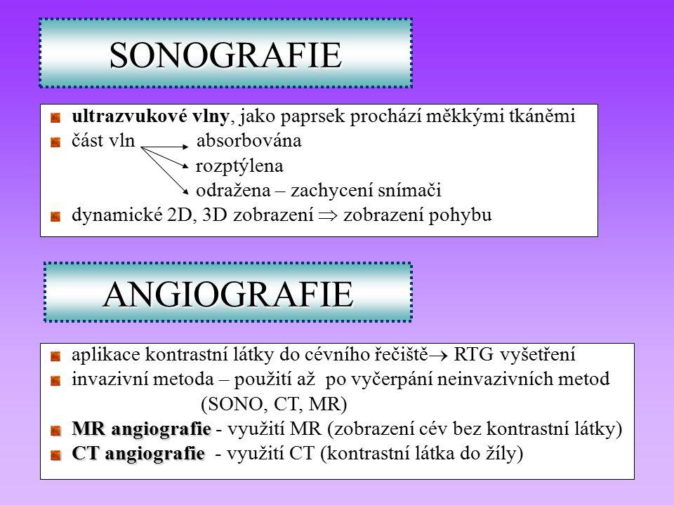 SONOGRAFIE ANGIOGRAFIE